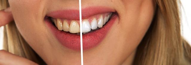 odstíny zubů.jpg
